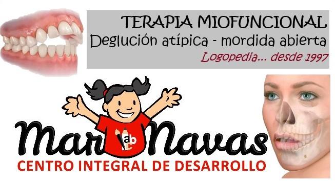 Terapia Miofuncional